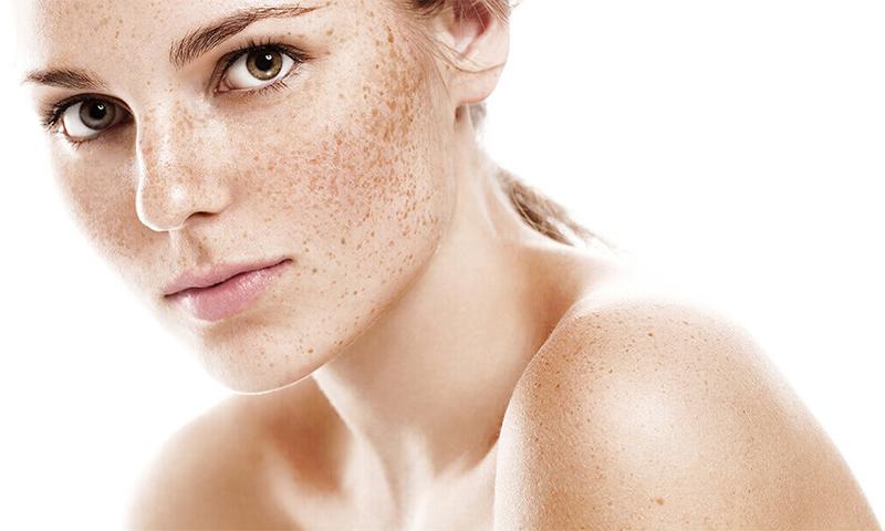 Эффективные крема от пигментации на лице